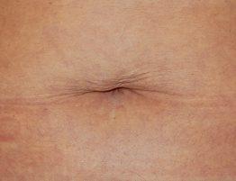 Rejuvenecimiento y Remodelación sin Cirugía Radiofrecuencia