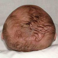 braquicefalia.jpg