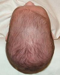escafocefalia.jpg