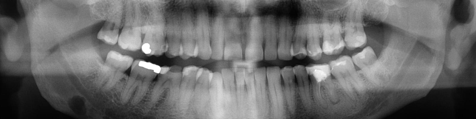 Ortopantomografía - Pruebas diagnósticas
