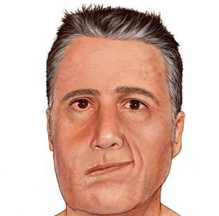 Parálisis Facial - Artículo de Rehabilitación